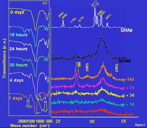 Fig. 9: IFTR del vidrio y de la capa formada a distintos tiempos. Difragtograma de RX de una hidroxiapatita cristalina utilizada como patrón, del hueso y del vidrio antes y después de estar en contacto con fluidos fisiológicos durante distintos tiempos