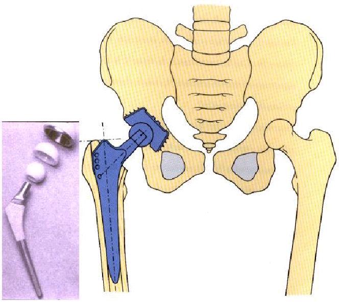 Fig. 6: Artroplastia de cadera donde intervienen simultáneamente materiales metálicos, cerámicos y poliméricos.