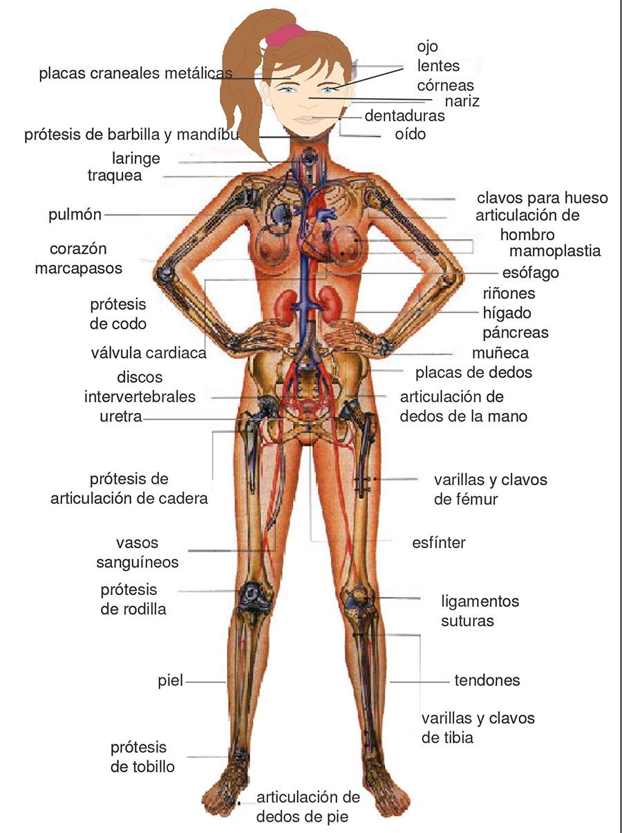 Fig1. Piezas que pueden implantarse en el organismo